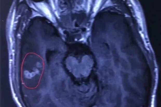 Любитель мяса с кровью заработал червя в мозгу