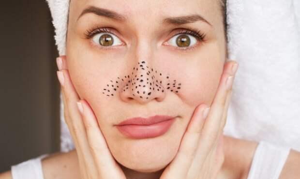 Причины появления и способы устранения черных точек на лице