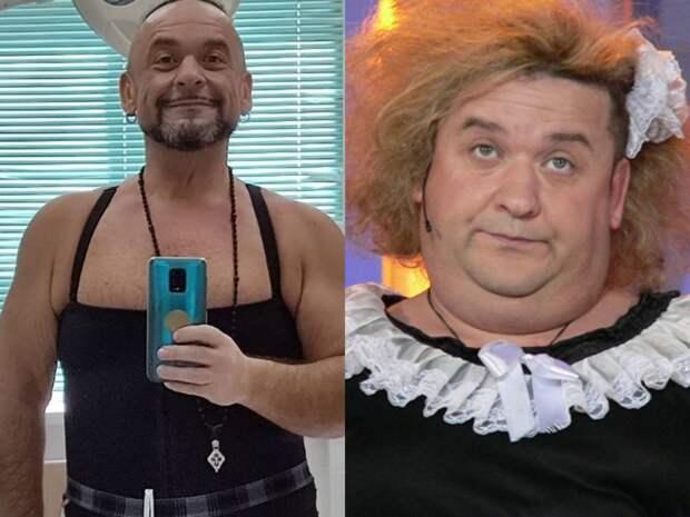Похудевший на 50 кг юморист Александр Морозов показал фото с обвисшей кожей