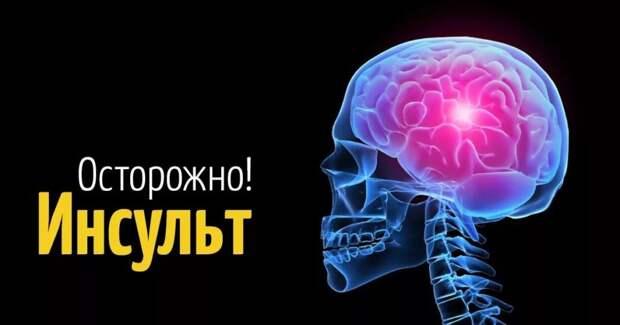 Инсульт - симптомы, первая помощь и виды реабилитации