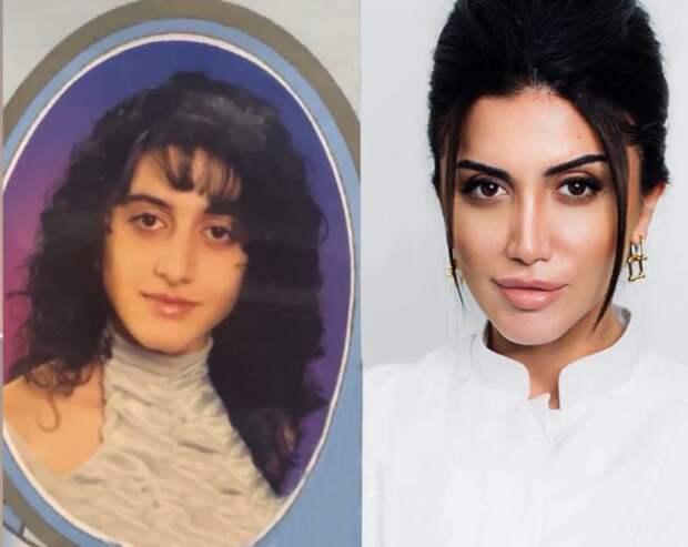 Как выглядела косметолог Оксана Овсепян до операций?