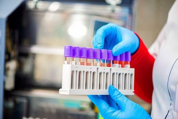На Кубани 92 человека заразились коронавирусом