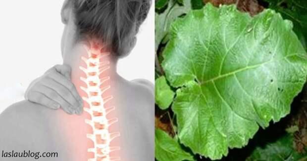 Листья лопуха ослабляют симптомы шейного спондилеза. Вот что с ним делать