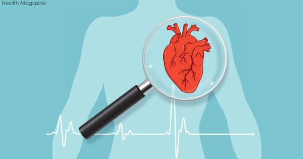 Комаровский рассказал, как быстро определить инфаркт