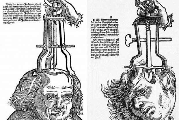 Странные медицинские процедуры, которые в прошлом считались целебными