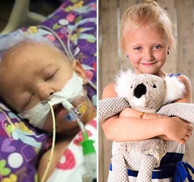 25 фотографий храбрецов, которые победили рак