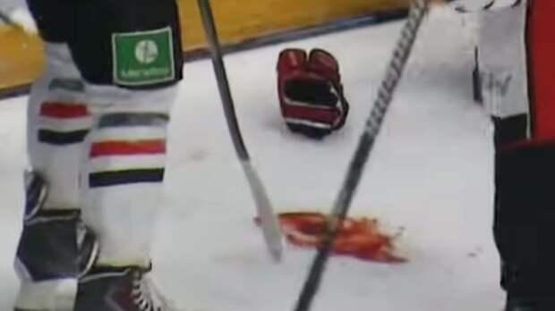 Жуткая травма русского хоккеиста. Калинин бился в судорогах после удара затылком об лед: видео
