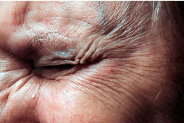 Косметолог раскрыла способы предотвратить появление морщин без пластики