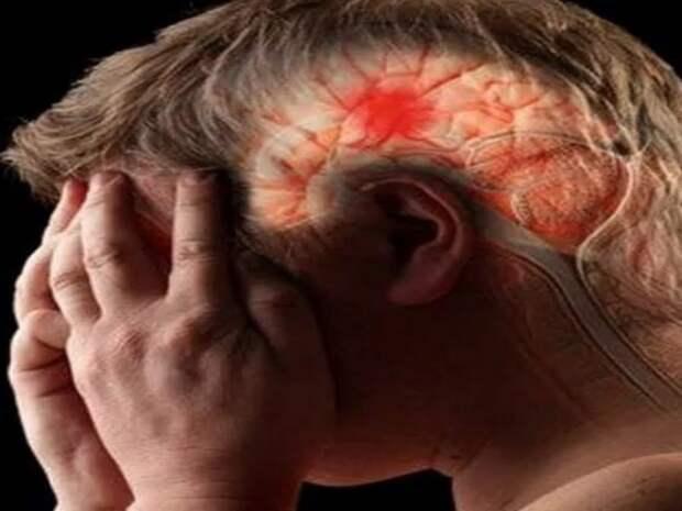 Как распознать опухоль головного мозга: основные симптомы новообразования