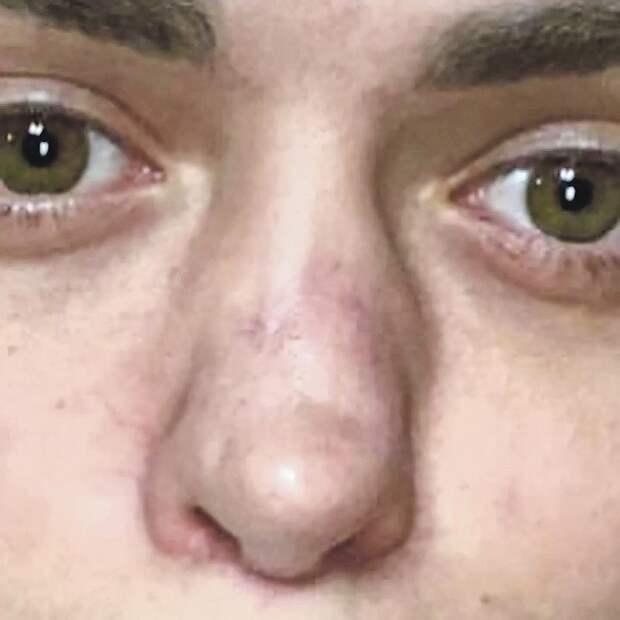 Пластический хирург Сергей Кулагов: Нос у бывшей жены Аршавина мог провалиться, как у Майкла Джексона