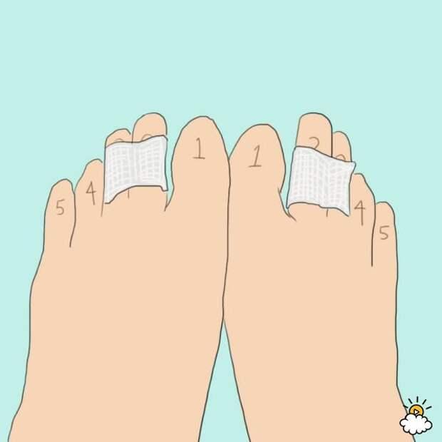 Вот зачем она склеила два средних пальца на ногах