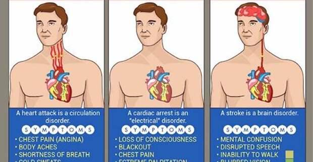 Это может спасти вам жизнь: разница между инфарктом, инсультом и остановкой сердца