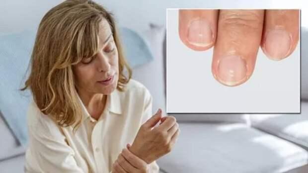 Симптомом каких заболеваний являются белые пятна на ногтях, объяснили медики