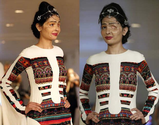 Жертва обливания кислотой прошла по подиуму на Нью-Йоркской неделе моды