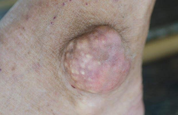 7 заболеваний, риск которых возрастает после 50 лет