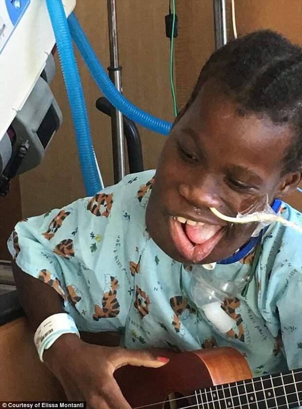 Нижняя челюсть девочки была реконструирована с использованием трансплантата из участка малой берцовой кости врачи, операция, опухоль