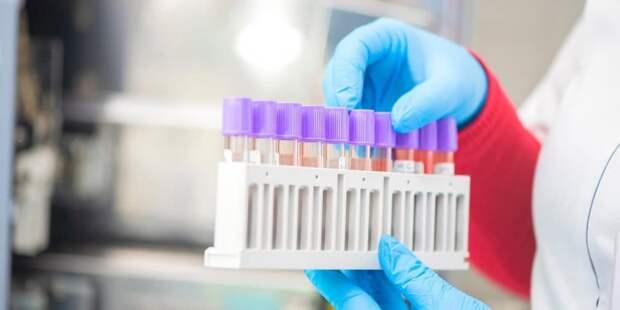 В Москве провели более 22 млн ПЦР-тестирований на COVID-19