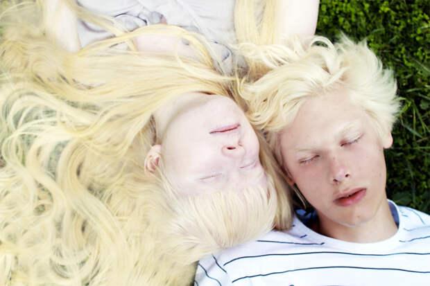 Как выглядят альбиносы разных национальностей ирас