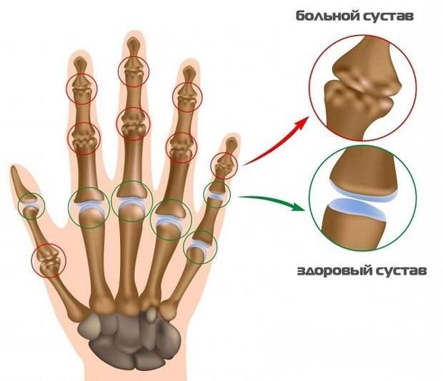 Постепенная деформация сочленений приводит к появлению выраженных симптомов