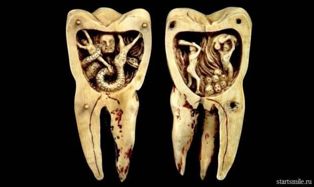 Как зубной налет превращается в кариес