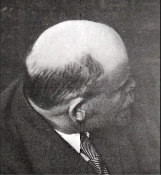 Фото 9.  Фотоснимок Ленина в фотоальбоме ЦК КПСС, отросшие седые корни волос.