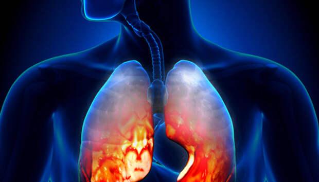 В Карелии люди продолжают умирать от внебольничной пневмонии