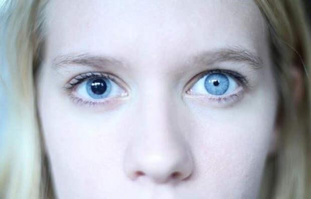 Что означает термин «ленивый глаз» - Estet-Portal