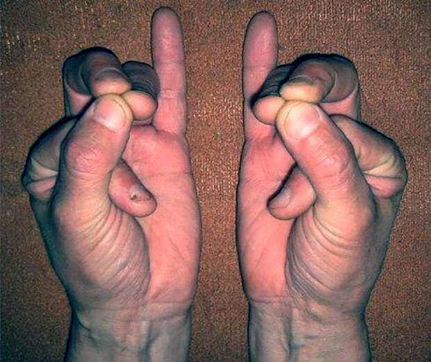 Сложите пальци в такой позиции — это может спасти вам жизнь!