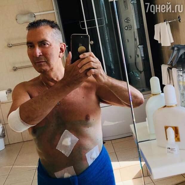 В СМИ попали пугающие фото Буйнова после операции