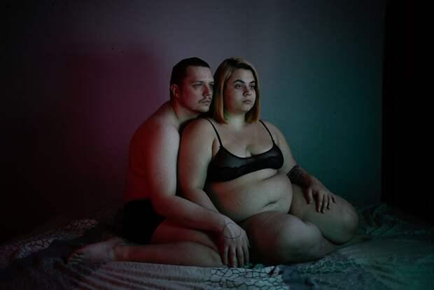 «Я не пропаганда и не кусок жира, я человек»: откровенный фотопроект о том, как это — быть толстым в России