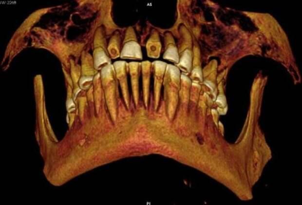 Следы древней стоматологии.