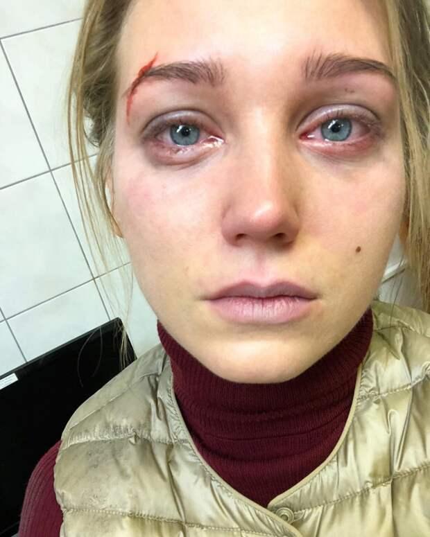 «Харламов девочек бьет?»: Кристина Асмус показала фотографию с избитым лицом
