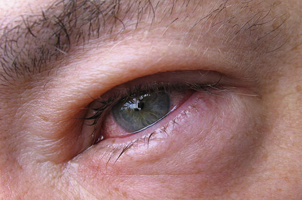 У вас глаз красный! Что делать с лопнувшим сосудом