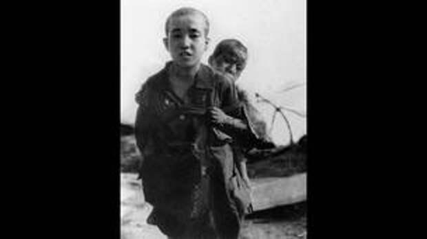 Фото от 10 августа 1945 г.: два брата, переживших атомный взрыв.