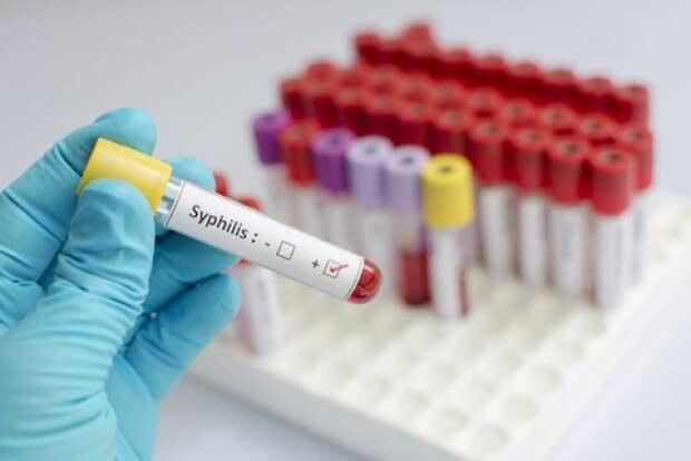 В цифрах и фактах: сифилис впервые появился в России в 1499 году