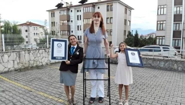 Жительница Турции официально стала самой высокой женщиной вмире