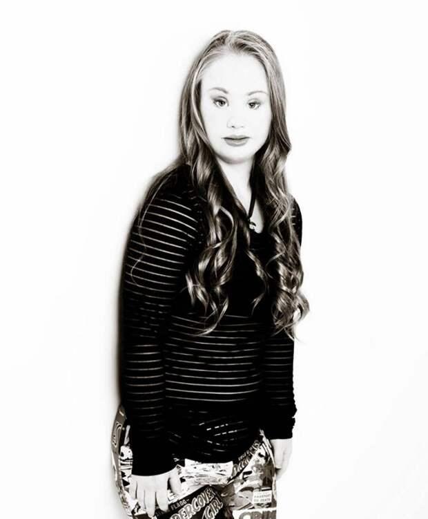 18-летняя девушка хочет доказать, что люди с синдромом Дауна тоже могут быть моделями
