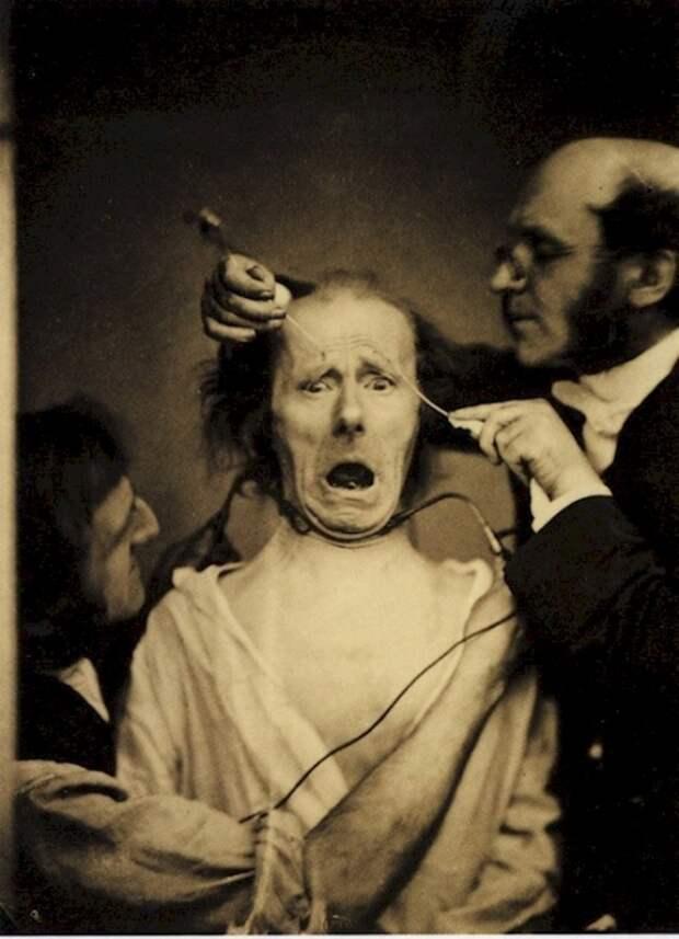 Дюшен де Булонь изучает влияние электричества на нервы. Франция, 1862 год.