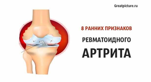 8 ранних признаков ревматоидного артрита, о которых вы должны знать