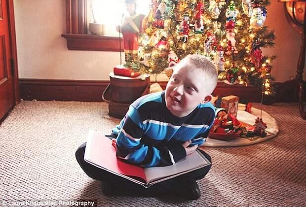 Теплые фотографии детей с синдромом Дауна