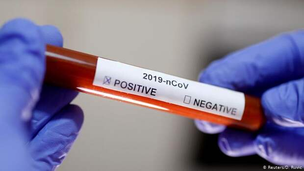 Какие шансы заразиться коронавирусом для людей с разными группами крови