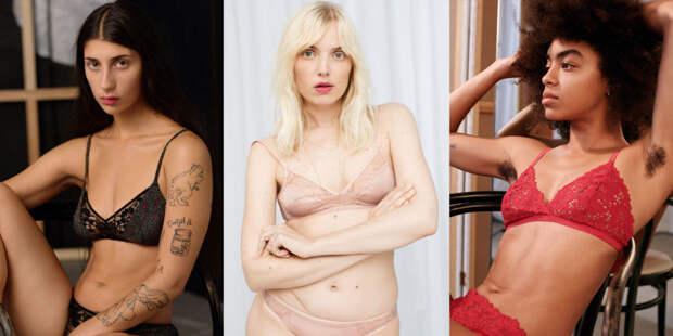Шрамы, родимые пятна и небритые подмышки: & Other Stories представили рекламную кампанию с обычными девушками