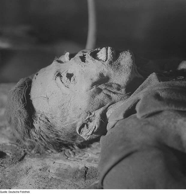 Fotothek_df_ps_0000424_Kopf_einer_männlichen_Leiche_(durch_Mumifikation_erhalten.jpg