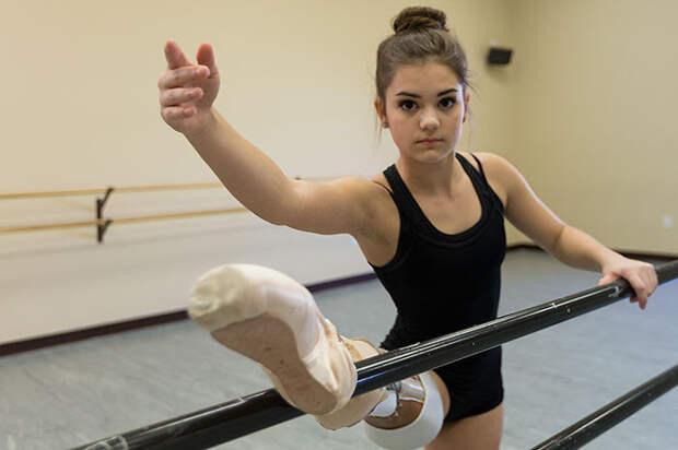 Балерина без ноги: Как 15-летняя девушка победила рак на пути к своей мечте