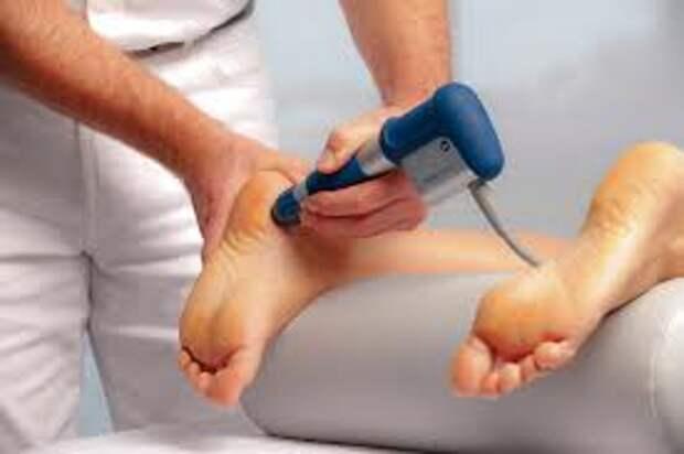 Как вылечить пяточную шпору эффективно и избавиться от боли?