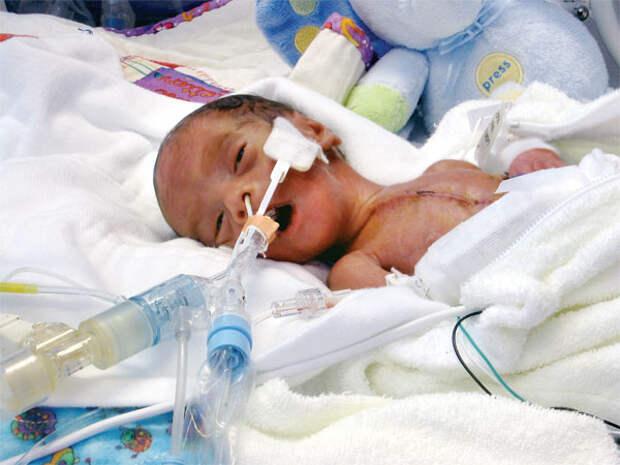 К чему приведёт вывод абортов из системы обязательного медицинского страхования