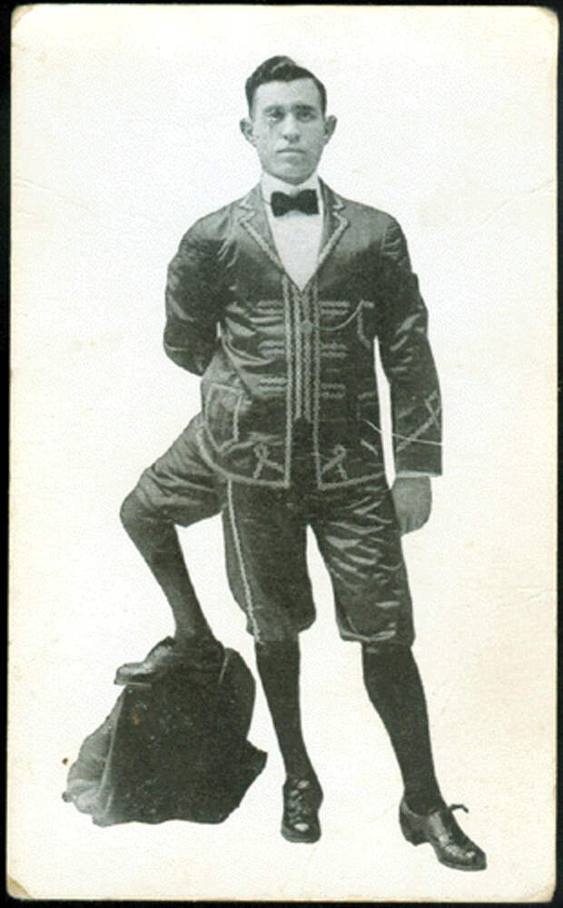 Франческо Лентини (Francesco A. Lentini) — человек родившийся с тремя ногами (3)