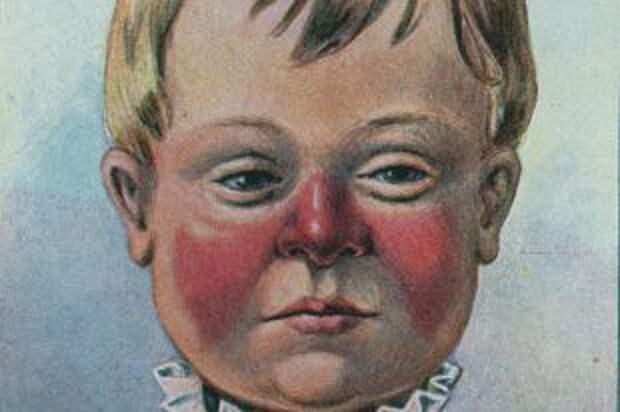 Как оказать первую помощь при рожистом воспалении