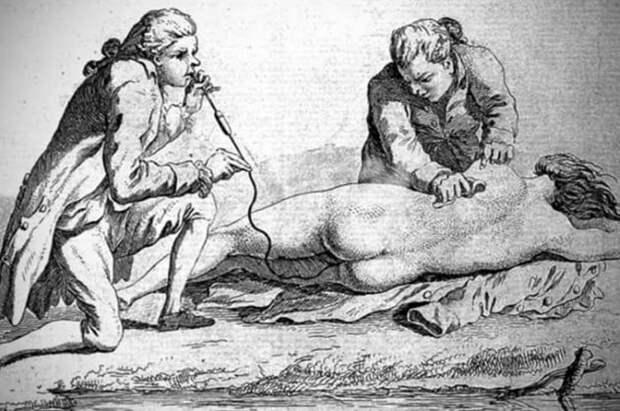 Мышьяк для толстушек, клизма из дыма и другие процедуры, которыми лечили наших предков