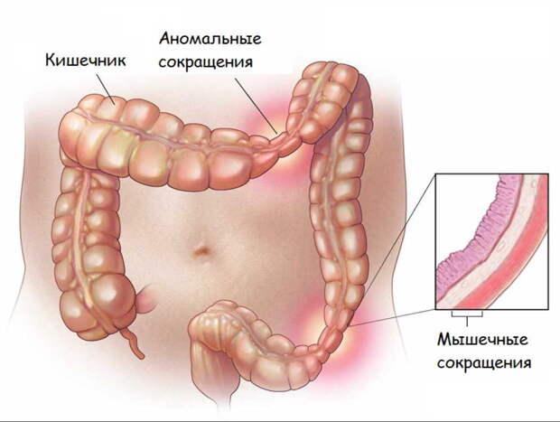 Врач-гастроэнтеролог: синдром раздраженного кишечника - что это такое?